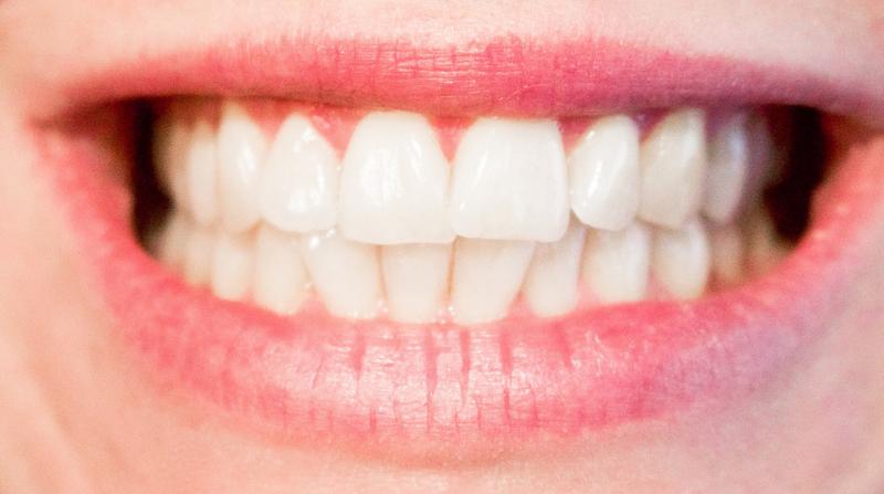दांत की परिभाषा, प्रकार और महत्वपूर्ण प्रश्न उत्तर